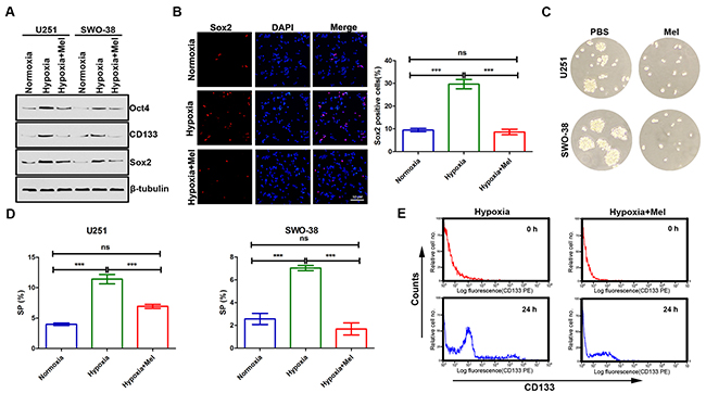 Effect of melatonin on cancer stem cell self-renewal in glioma cells under hypoxic stress.