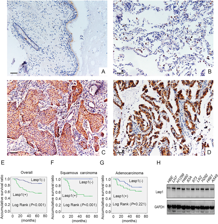 Lasp1 expression in NSCLC specimens and cell lines.