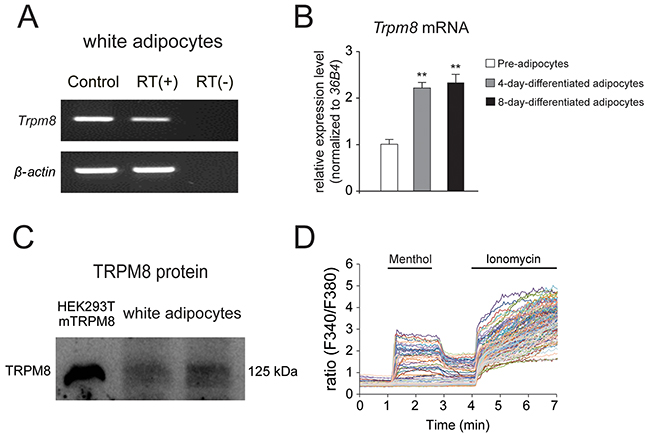 TRPM8 is functionally expressed in mouse differentiated white adipocytes.