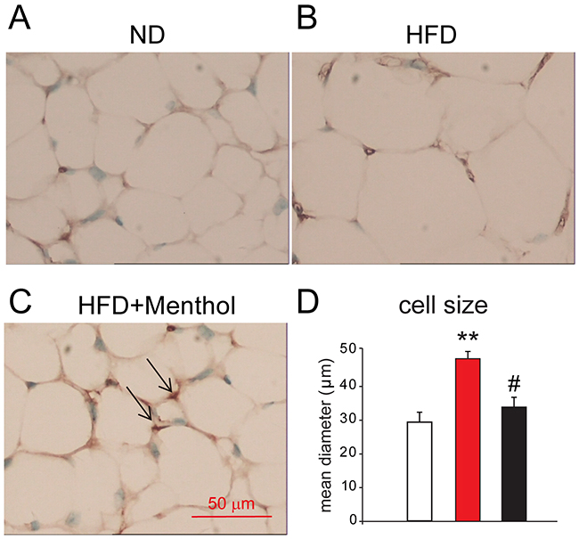 Immunohistochemistry results of UCP1 staining in sWAT among mice treated with ND, HFD or HFD+menthol.