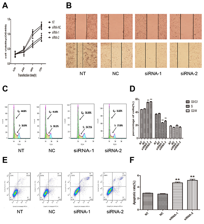 Effect of AFAP1-AS1 knockdown on cell proliferation, migration, cell cycle distribution and apoptosis in vitro.