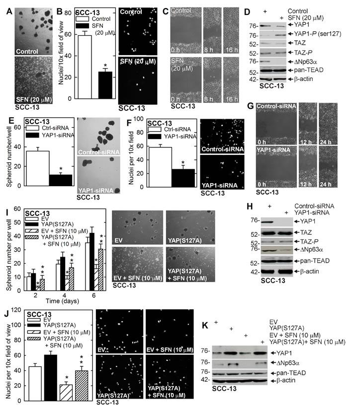 Sulforaphane targets YAP1/∆Np63α to suppress ECS cell phenotype.
