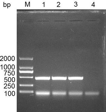 Cloning the IFITM3 gene in swine spleen tissue.