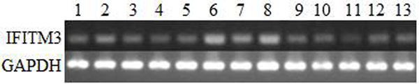 Expression patterns of the IFITM3 mRNA in various swine tissues.