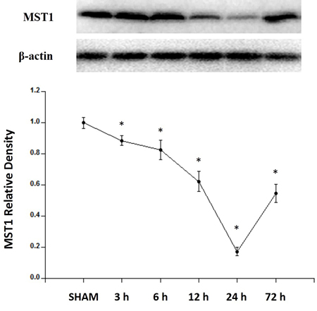 Expression profiles of MST1 in SAH rats.