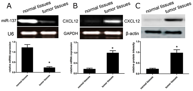 The expression profile of miR-137 and CXCL12 in GBM tissues.