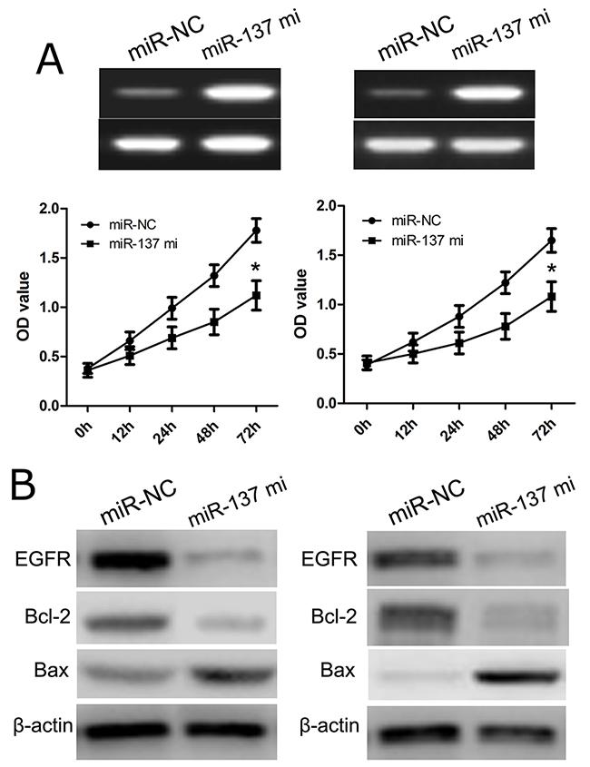 miR-137 inhibits glioblastoma cell proliferation.