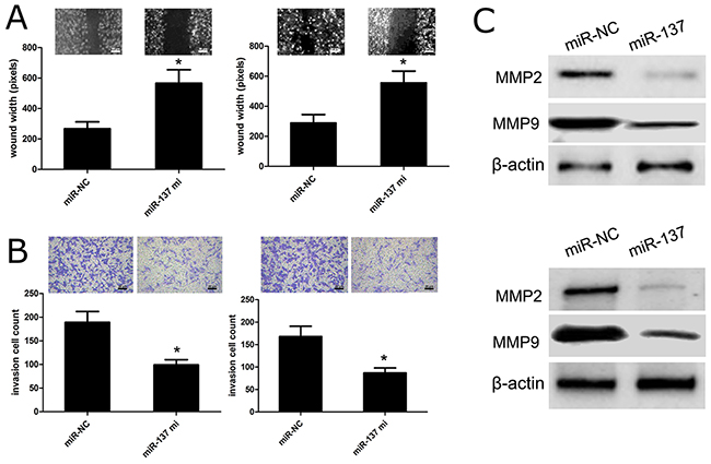 miR-137 reduces GBM cell migration and invasion.
