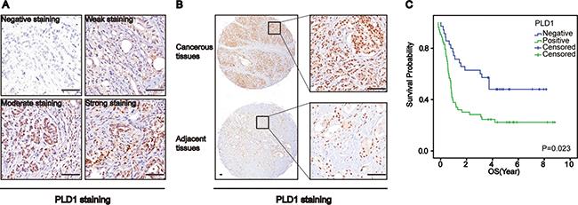 Phospholipase D1 (PLD1) confers a poor prognosis for patients with osteosarcomas.