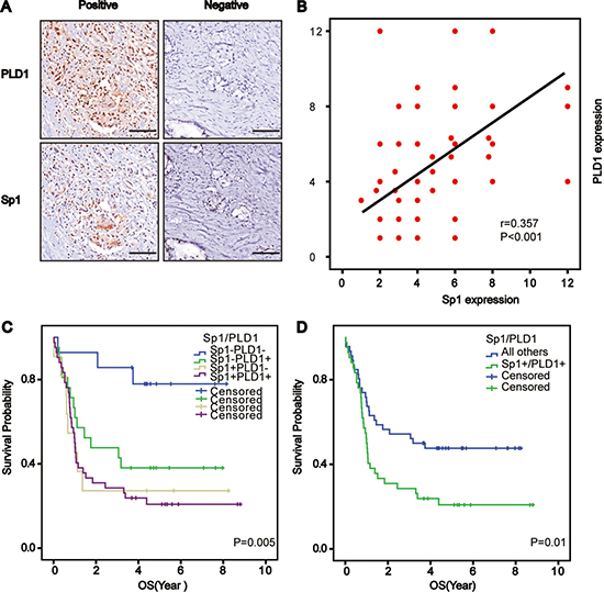 Correlated Sp1 and PLD1 confer the worst prognosis for osteosarcoma patients.