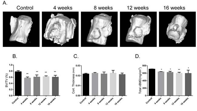 Assessment of bone microarchitecture.