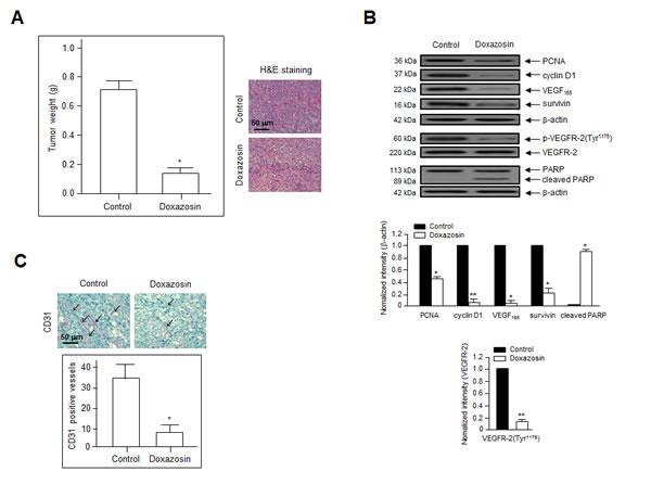 Doxazosin suppresses tumor growth by inhibiting angiogenesis