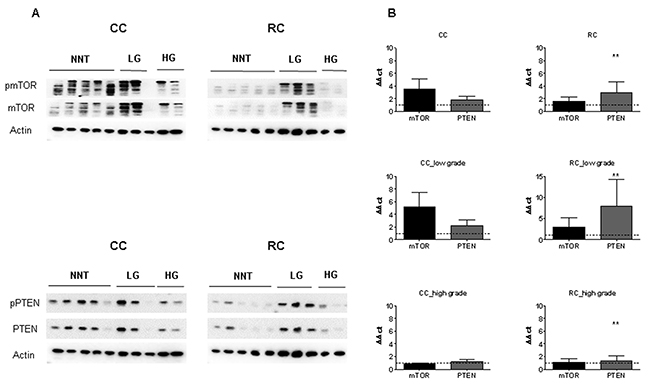 mTOR and PTEN expression in low and high grade CC and RC.