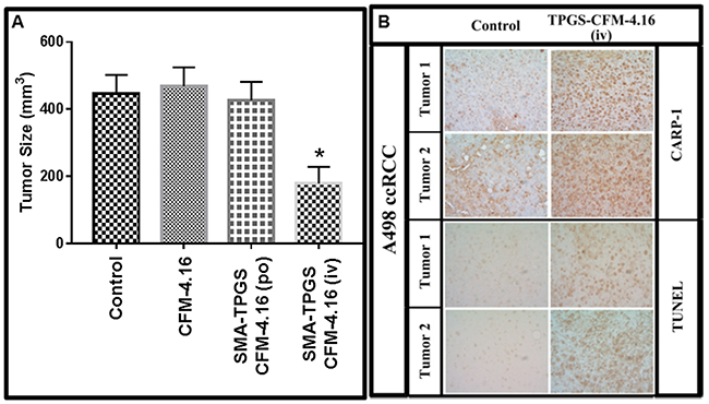 Nano-micellar formulation of CFM-4. 16 inhibits growth of RCC cell-derived xenografts.