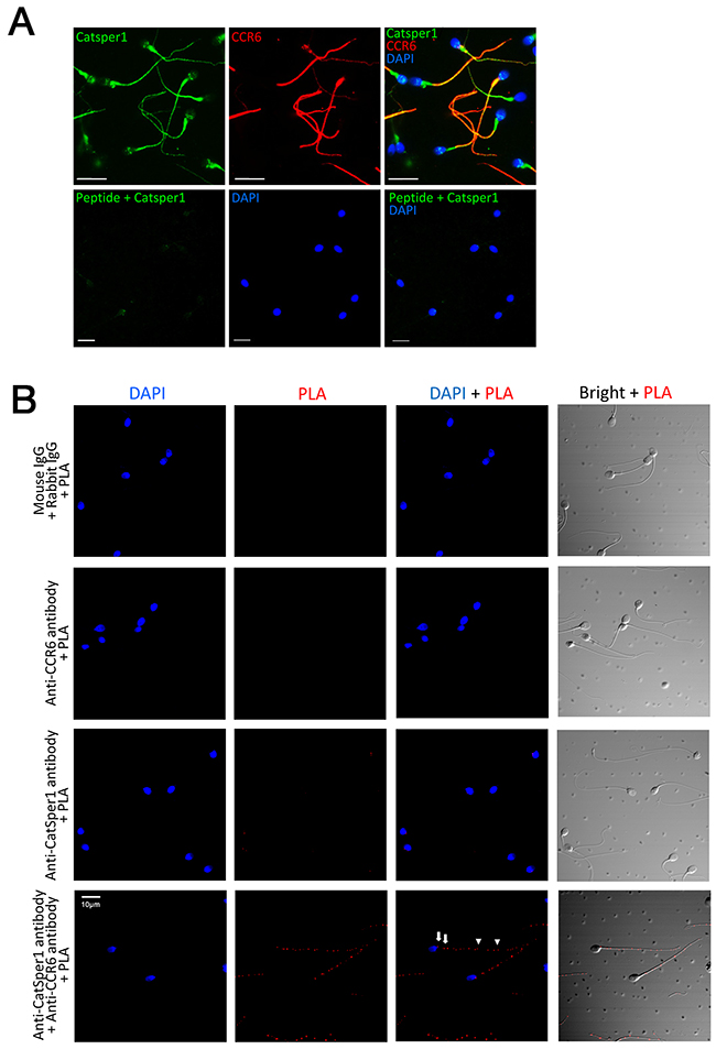 CCR6 interacts with CatSper1 in human sperm.
