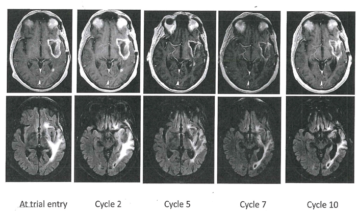 Axial T1-weighted contrast-enhanced (top row) and T2-FLAIR images (bottom row) in Patient 5.