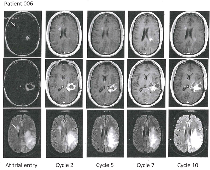 Axial T1-weighted contrast enhanced (top two rows) and T2-FLAIR images (bottom row) in Patient 6 with an original left temporal glioblastoma as depicted in the middle row.
