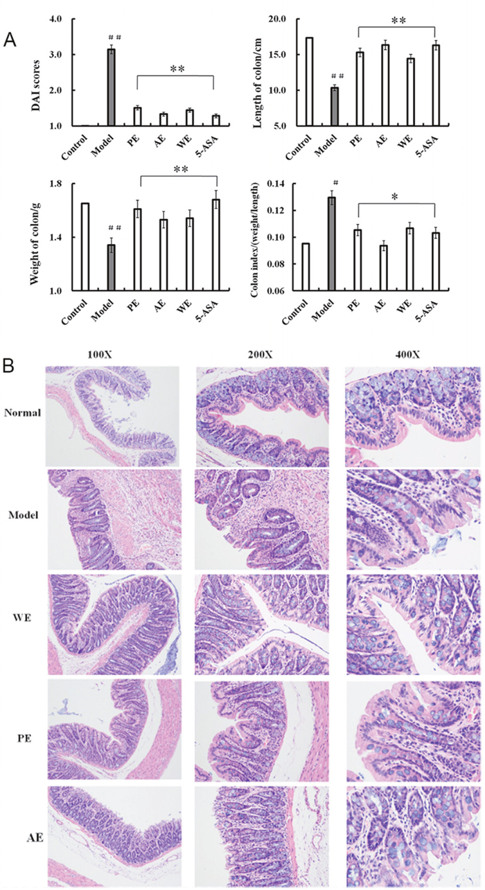 DAI scores and histopathological changes in the colon of rats in differently treated groups after induction by TNBS.