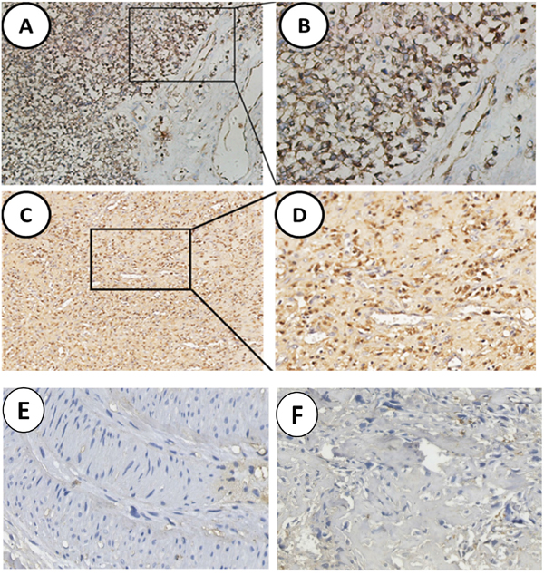 Analysis of SNAT1 expression in human osteosarcoma.