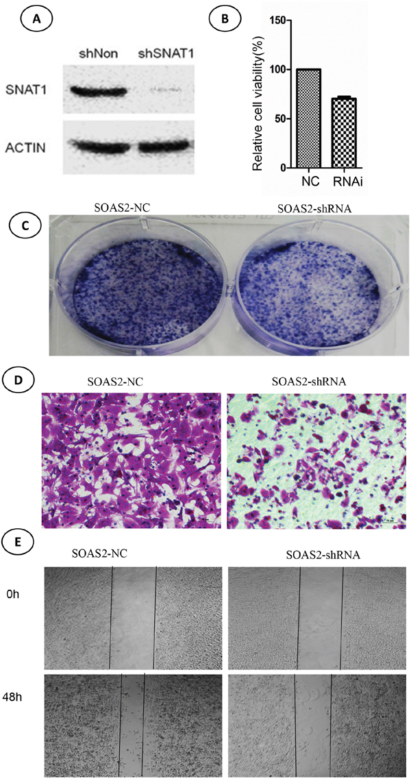 Effects of SNAT-shRNA on cell viability, colony formation, and migration in soas-2 cell lines.