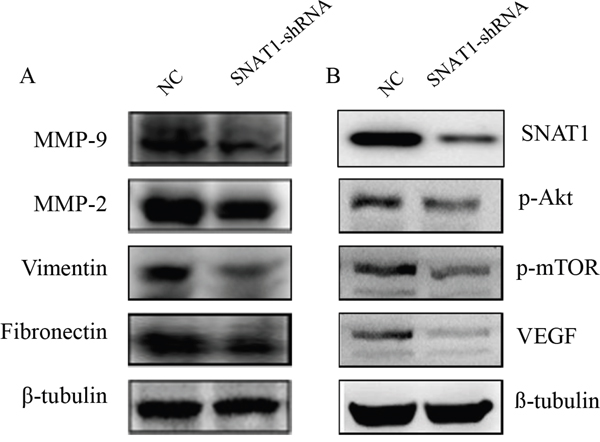 After silencing SNAT1 using SNAT1-shRNA, western blot assay was used to detect the expression of MMP-9, MMP-2, Vimentin, and Fibronectin (A), as well as VEGF, p-mTOR, and p-Akt (B).