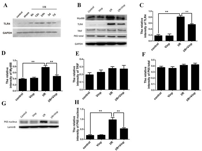 Vinpocetine inhibited the activation of the TLR4/MyD88 /NF-κB pathway in mice with cerebral ischemia reperfusion injury.