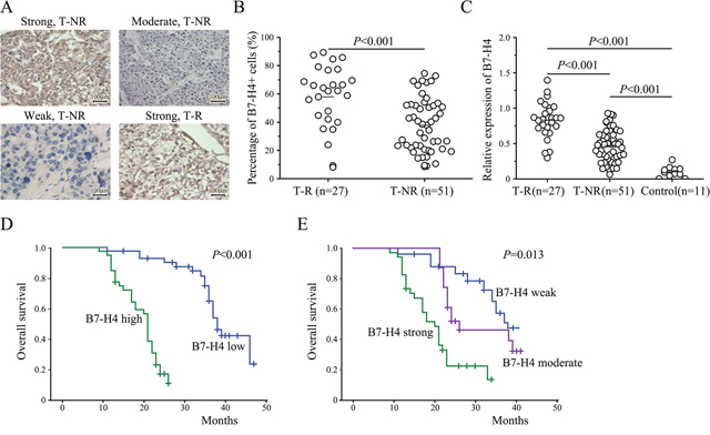 The expression of B7-H4 in HCC and the overall survival of 78 HCC patients stratified by B7-H4 protein expression and intensity levels.