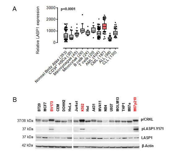 LASP1 is overexpressed in CML and phosphorylated at Tyr-171 in leukemia cell lines.