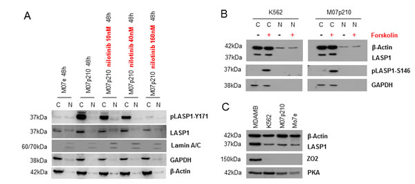 In CML cells LASP1 is not localized in the nucleus.