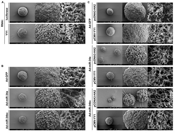 miR-34 family affects tumorsphere ultra-structure of SC-M1 gastric cancer cells through YY1.