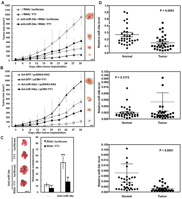 miR-34 family inhibits tumor growth and lung metastasis of SC-M1 gastric cancer cells through down-regulation of YY1.