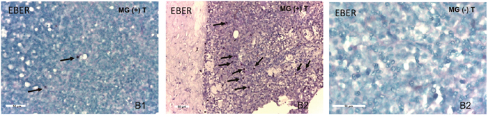 Detection of EBV-encoded small RNAs (EBERs) in MG thymomas, but not in non-MG thymomas, by in situ hybridization.