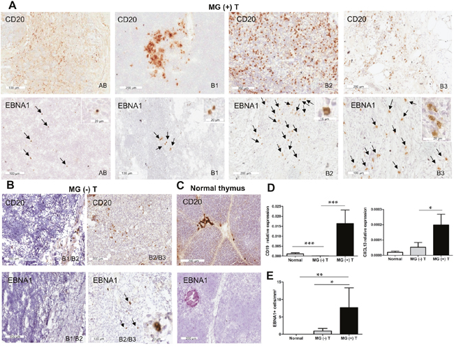 High degree of B cell infiltration and detection of EBNA1-positive cells in thymomas associated with MG.