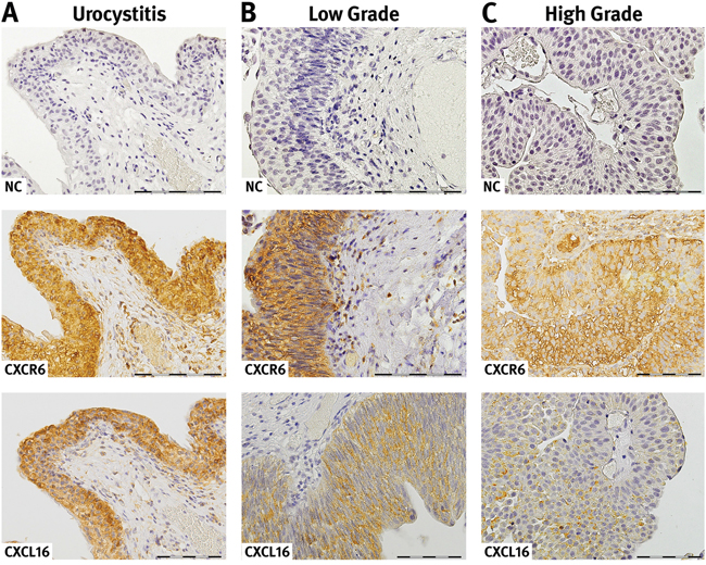 Expression and localization of CXCR6 and CXCL16 in urothelial tissue.