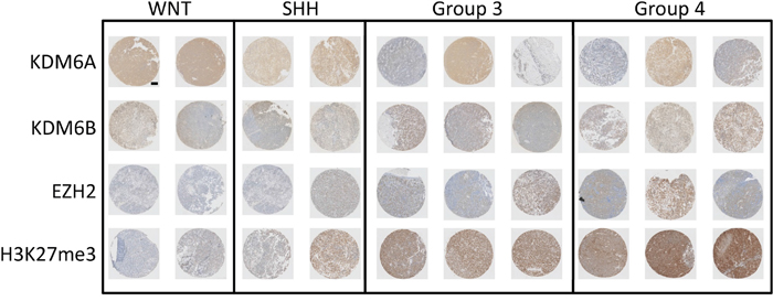 Expression of H3K27 and its modifiers in medulloblastoma.