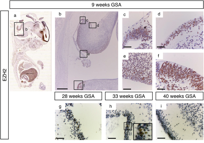 EZH2 expression during human cerebellum development.