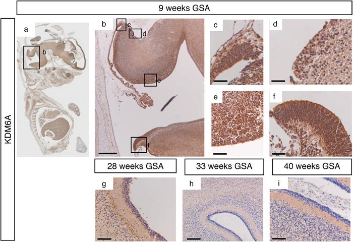 KDM6A expression during human cerebellum development.