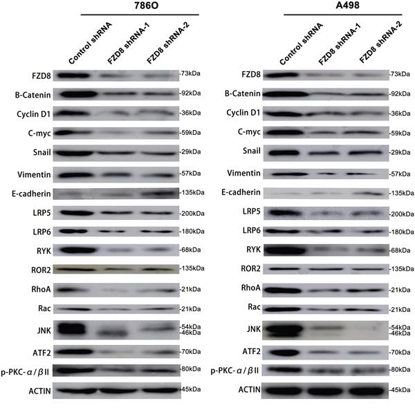 Western blotting analysis of FZD8, β-catenin, Cyclin D1, C-myc, Snail, Vimentin, E-cadherin, LRP5, LRP6, RYK, ROR2, RhoA, Rac, JNK, ATF2, p-PKC-α/βII and Actin in FZD8 knockdown and control groups.