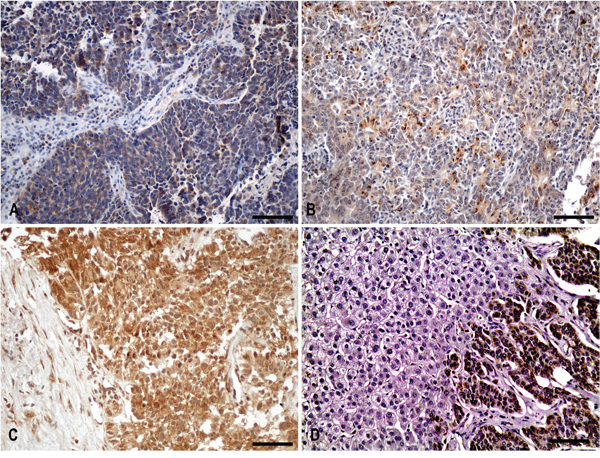 Cytoplasmic IGF-IEc staining in surgical and biopsy specimens.