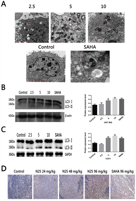 N25 induced autophagy in glioma cells and xenograft tumor model.