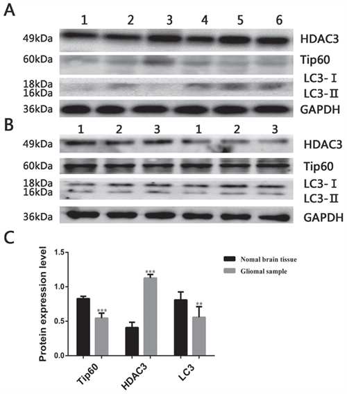 Expression of autophagy related protein in glioma samples.