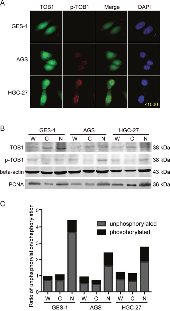 The subcellular distribution of TOB1 and p-TOB1 protein in AGS and HGC-27 GC cells.
