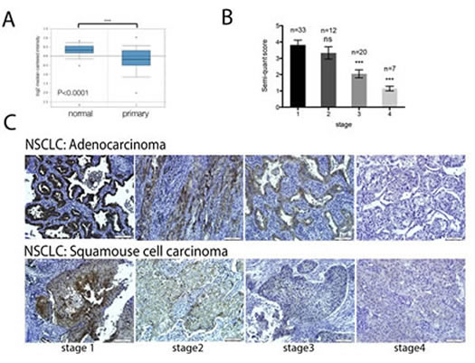 GCIP expression is significantly downregulated in lung cancer tissues.