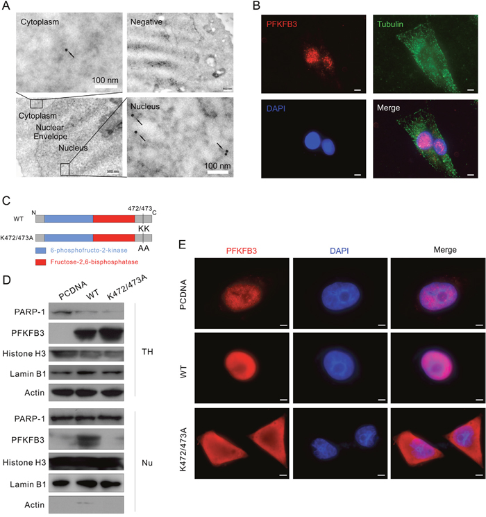 K472/473A mutation changes the nuclear localization of PFKFB3.