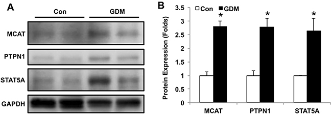 MCAT, PTPN1 and STAT5A expression in lymphocytes of umbilical cord blood from normal pregnant women and GDM patients.