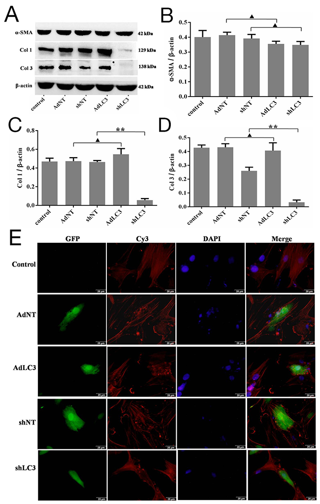 Knockdown of LC3 inhibited the expression of collagen matrix and affects the architecture arrangement of α-SMA in HSFs.