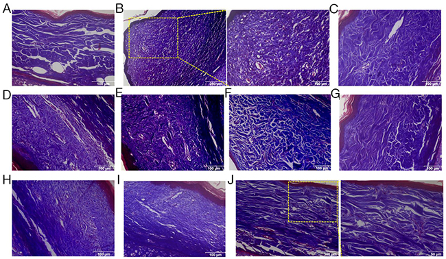 Knockdown of LC3 or Silencing for Bcl-xL reduced the deposition and improved the arrangement of collagen fibers in rabbit scar model.