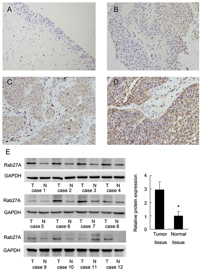 Expression pattern of Rab27A in bladder cancer tissues.