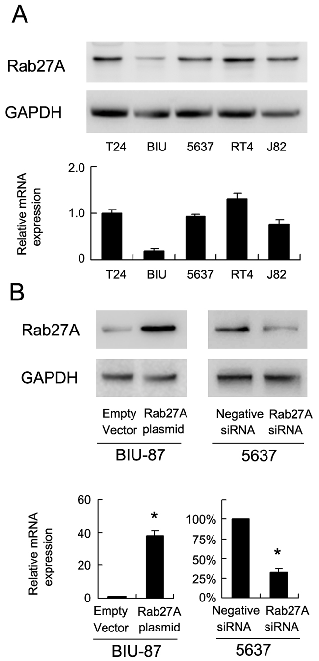 Expression of Rab27A in bladder cancer cell lines.