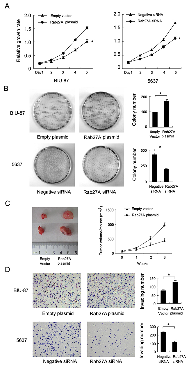 Rab27A promotes proliferation and invasion of bladder cancer cells.